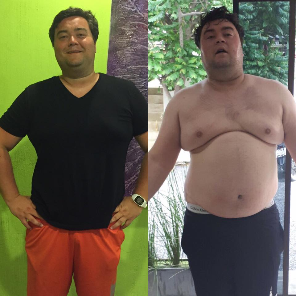 Extreme Weight Loss Thailand